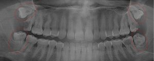 Extensive decay spread to adjacent teeth