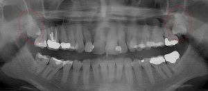 Severe gum infection requires extraction of 2nd and 3rd molars