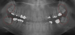 Prognosis for 2nd molars is poor